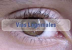 Cirugía de Vias Lagrimales
