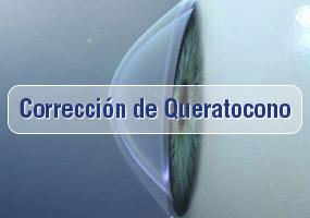 Cirugía de Queratocono