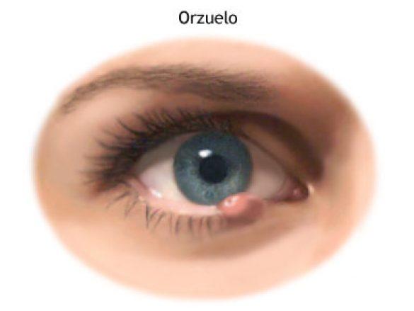 Orzuelos