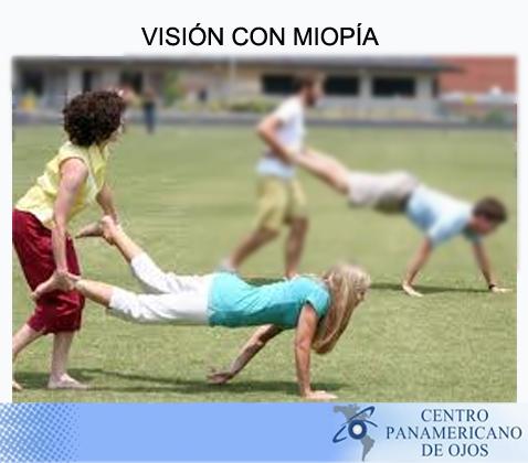 Visión con miopia