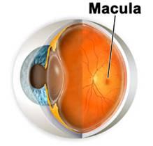 generacion macular DMAE