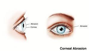abrasion corneal