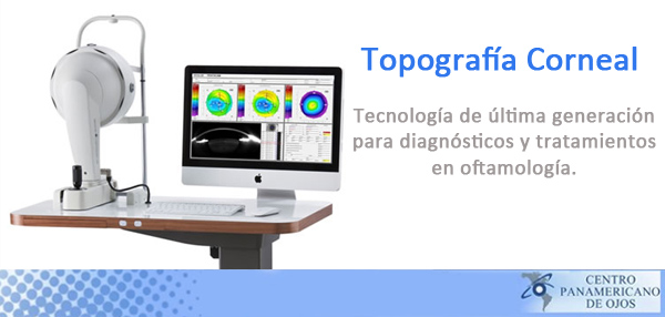 topografia corneal