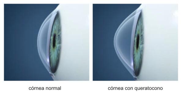 cornea_nk