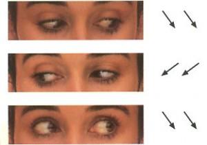 oculareslaterales-300x211