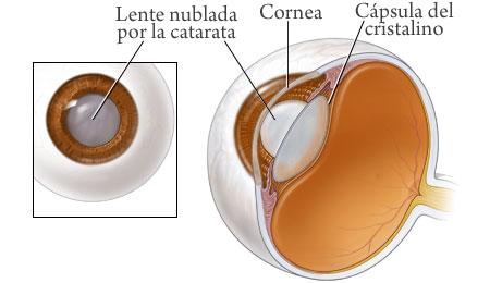 cataratas-ojos