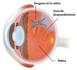 Detached_retina-01_250px-Spanish_1