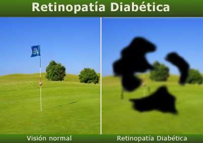 retinopatiadiabetica01