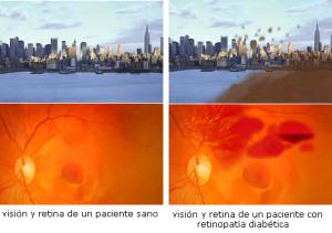 foto-12.-vision-con-retinopatia-diabetica