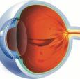 Retina6