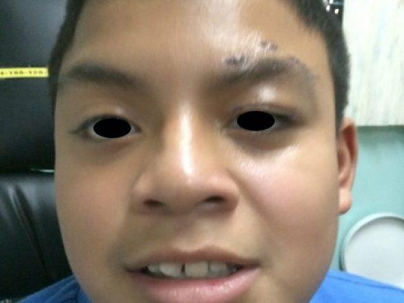 Caso de ptosis congénita de ojo izquierdo