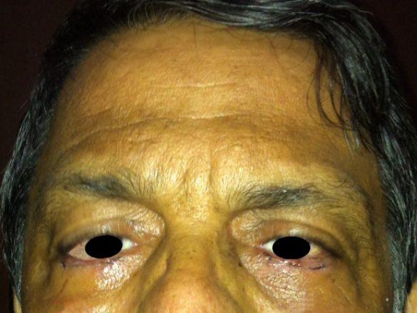 Caso 2 de Entropion de Parpados Inferiores Ambos Ojos