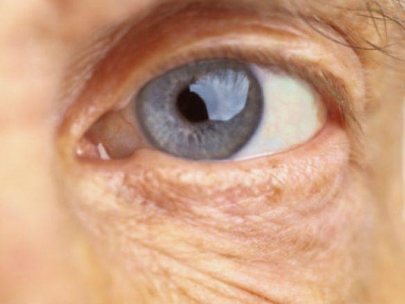 ¿Qué es la degeneración macular relacionada con la edad?