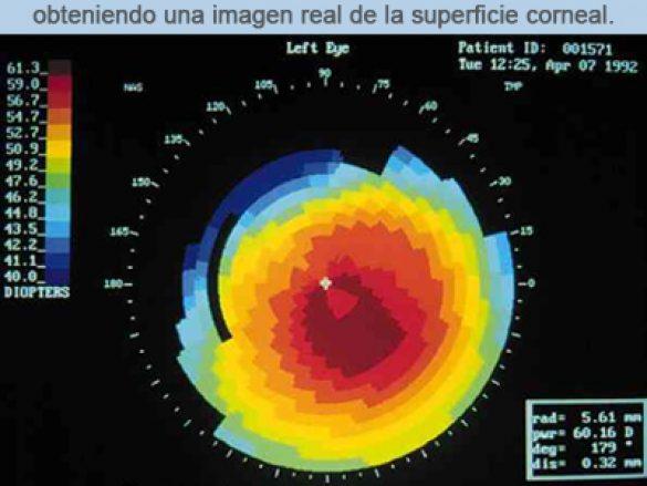 ¿Qué es la topografía corneal?