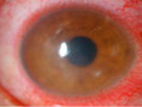 Inflamación de la córnea