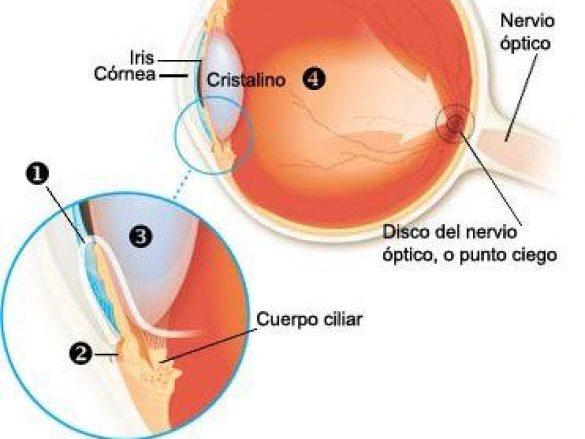 ¿Qué es Glaucoma de Ángulo Abierto?