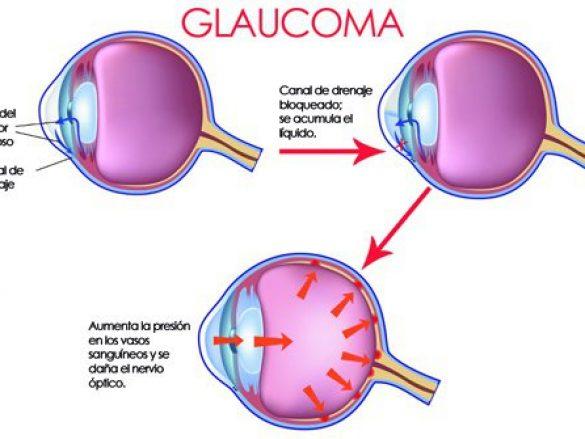 La importancia del diagnóstico y tratamiento temprano del Glaucoma