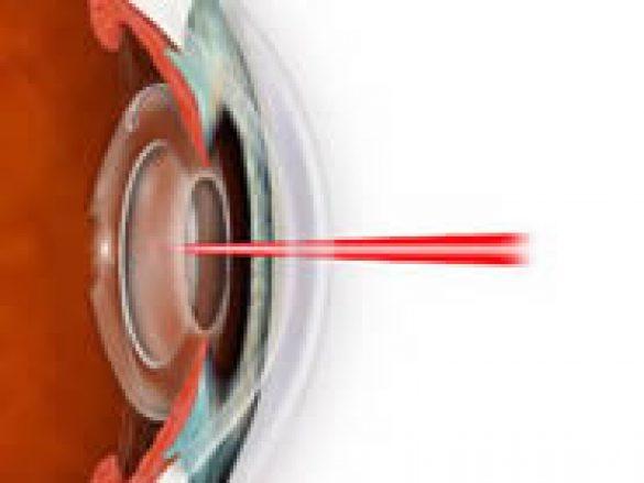 ¿Qué enfermedades pueden tratarse con cirugía laser?