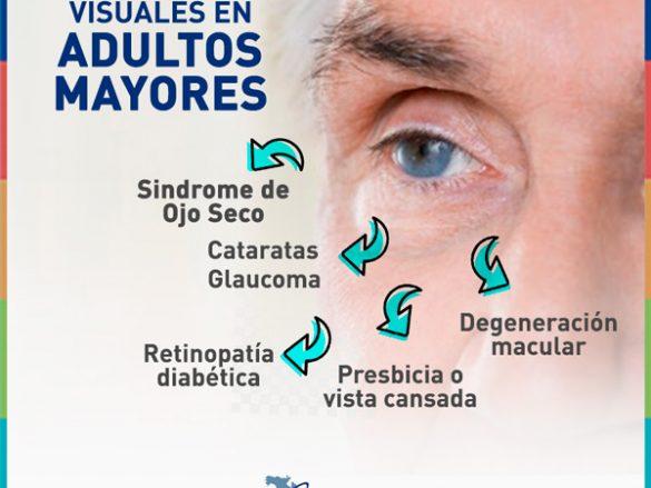 Padecimientos visuales en adultos mayores