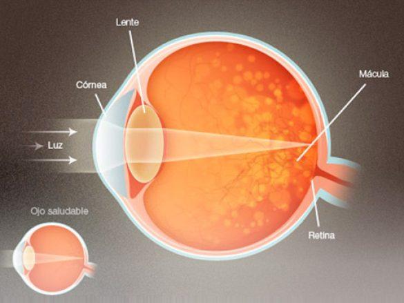 La degeneración macular seca
