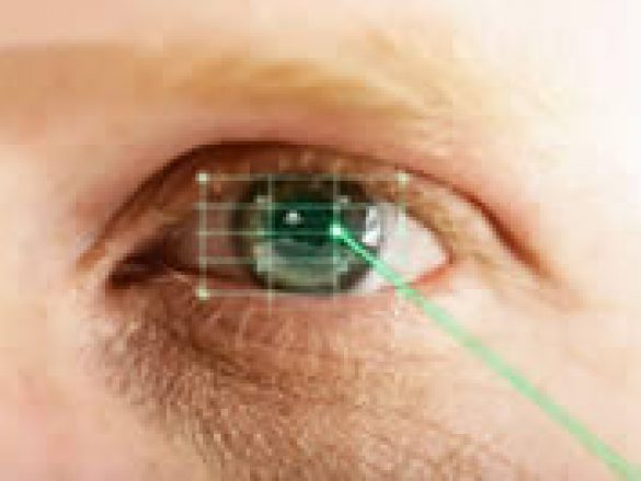 Laser en oftalmologia