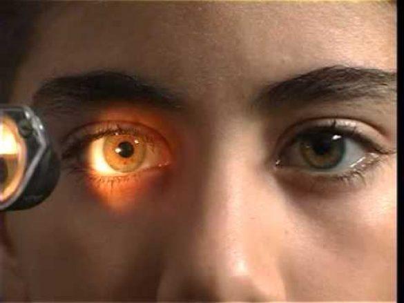 Reflejos pupilares