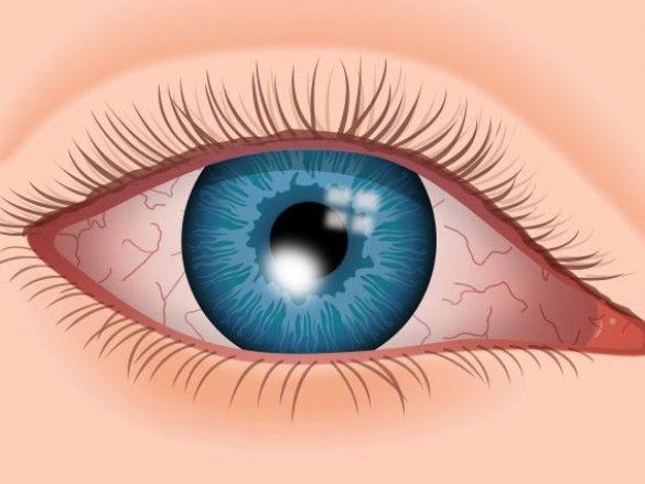Causas más frecuentes de úlceras e infecciones corneales