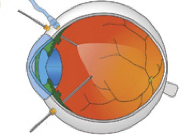¿Cómo se realiza la Vitrectomía?