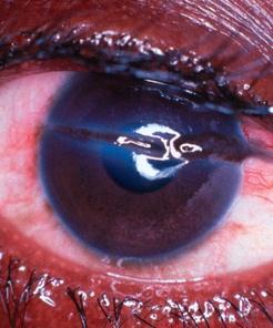 Laceración de la cornea