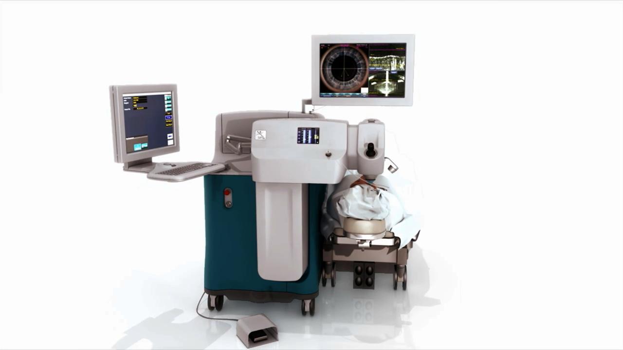 El láser LenSx™ la tecnología más avanzada para pacientes con cataratas