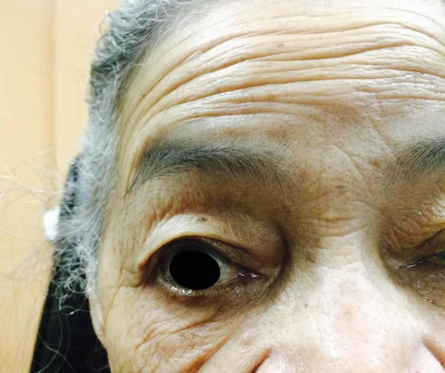 Casos de Ptosis de ojo derecho